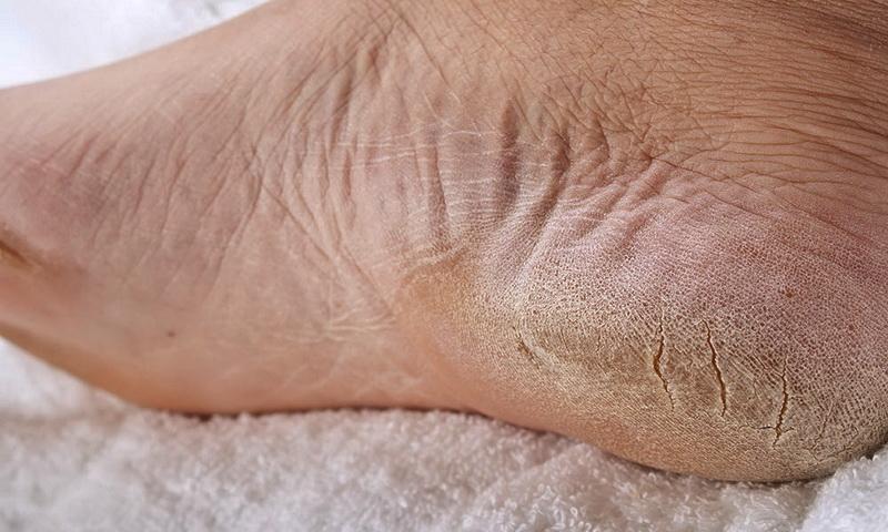 Как вылечить трещины на пятках: натуральное средство