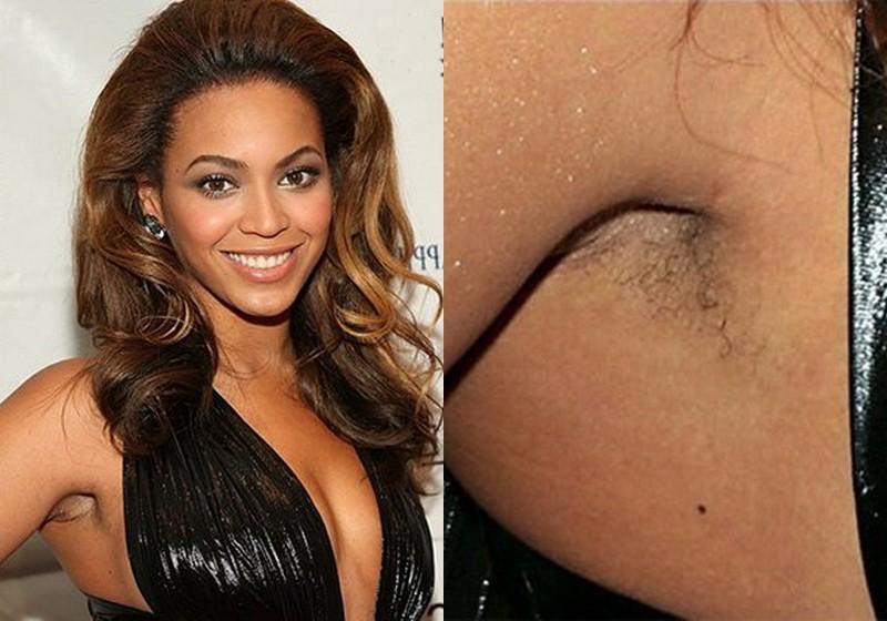 Знаменитые дамы, которым нравятся лишние волосы на теле