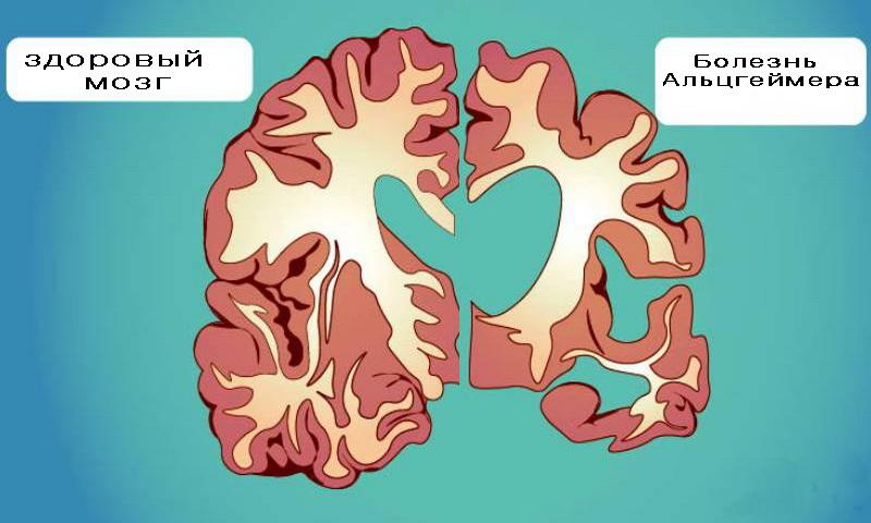 Мозг повреждение Альцгеймера